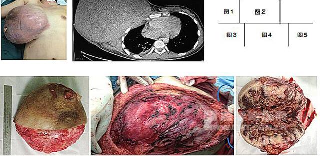 病例简介   患者,女性,15岁。自述入院前半年发现右乳约3 cm大小肿块,经用中草药和中成药治疗无效,近1个多月来肿块明显增大。   入院检查   患者右乳巨大肿块,长径约30 cm;皮肤水肿、微红,皮下血管怒张;肿块外下方因肿瘤溃破出血已用碘方纱填压止血(图1)。   胸CT提示右第3、4前肋骨皮质不连续,考虑肿瘤侵犯,右胸少量积液(图2)。   穿刺活检考虑恶性叶状肿瘤。   治疗过程   完整切除肿瘤(图3),基底肉眼干净(图4)。术中发现右第3、4肋骨断裂、内陷,并非肿瘤侵犯而是肿瘤过大、过重所
